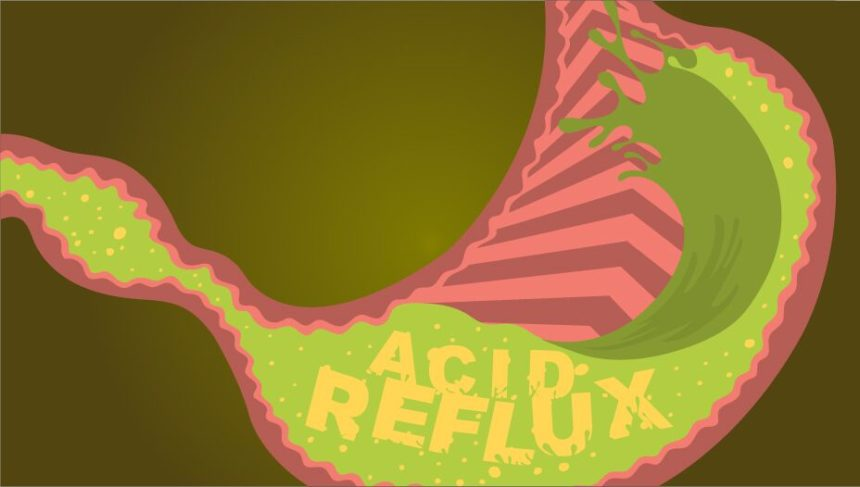 acid-reflux-hero-preview-860x487