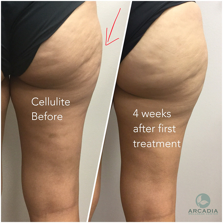 Using the Cellulite Cup Set to Deal With Cellulite