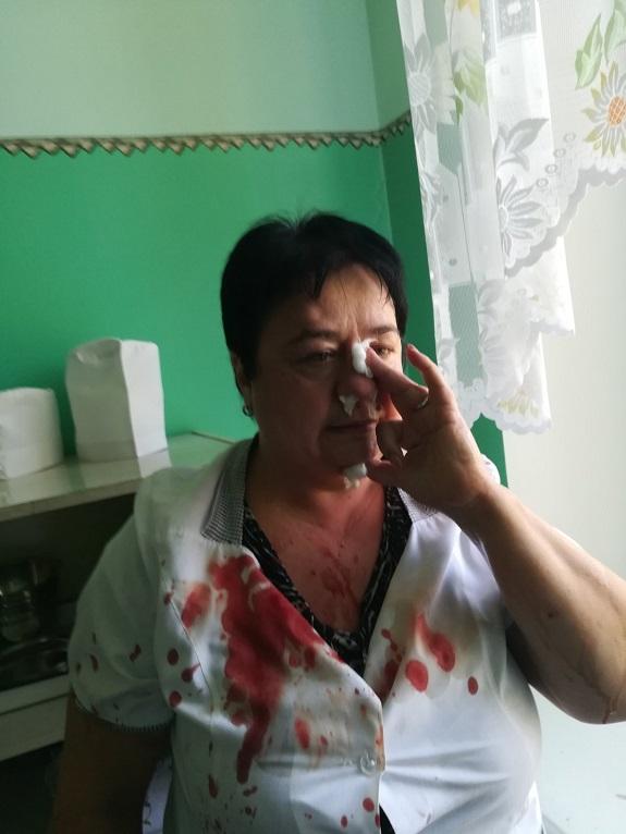 V pediatricheskom otdelenii Kramatorska izbili medrabotnika 2