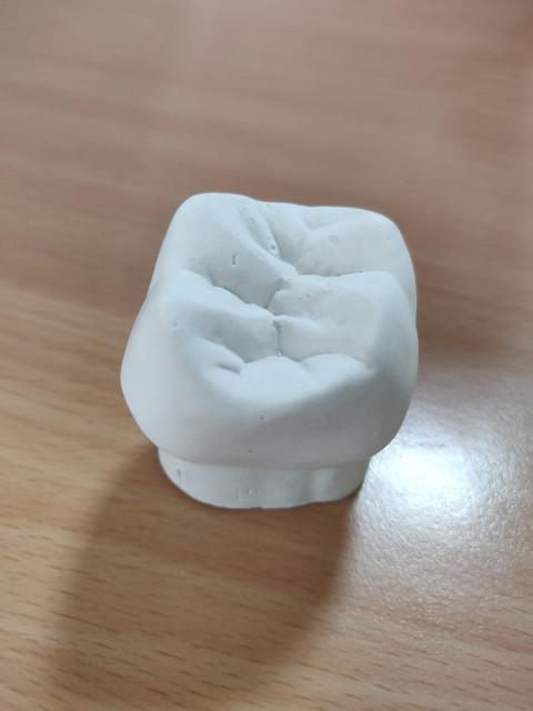 Paster Tooth Crown.jpg