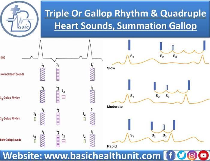 Triple Or Gallop Rhythm And Quadruple Heart Sounds, Summation Gallop