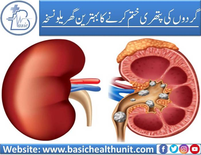 Best And Very Useful Home Remedies For Kidney Stones (100% Working)