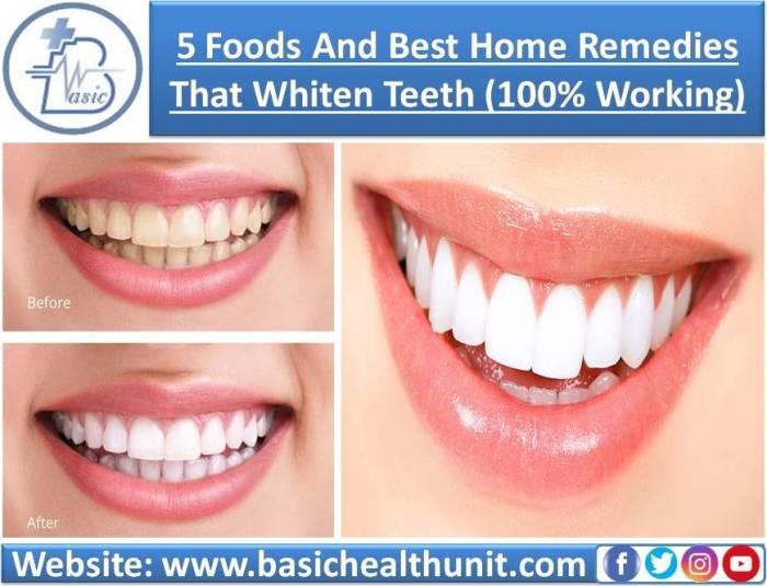 5 Foods & Best Home Remedies That Help Whiten Teeth (100% Working)