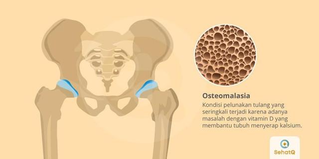[Image: osteomalasia-1571739065.jpg]