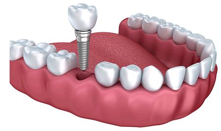 dental-implant-cost-Melbourne