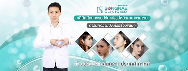 board-Songnae