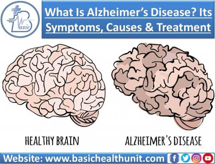 What Is Alzheimer's Disease? Its Symptoms, Causes And Treatments
