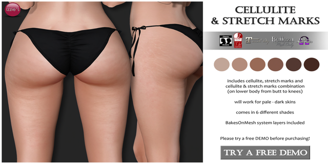 [Image: Izzie-s-Cellulite-Stretch-Marks.png]