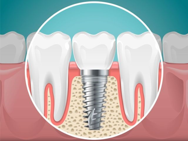 Guide-to-Dental-Implants