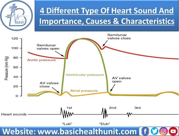 4 Different Type Of Heart Sound And Importance, Causes & Characteristics