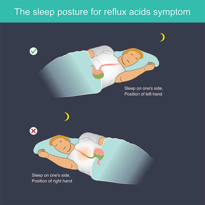 acid-reflux-sleep-position