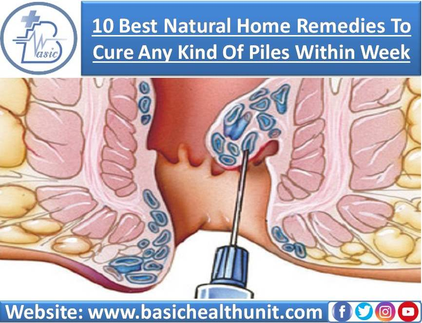 10 Best Natural Home Remedies To Cure Any Kind Of Piles Within A Week
