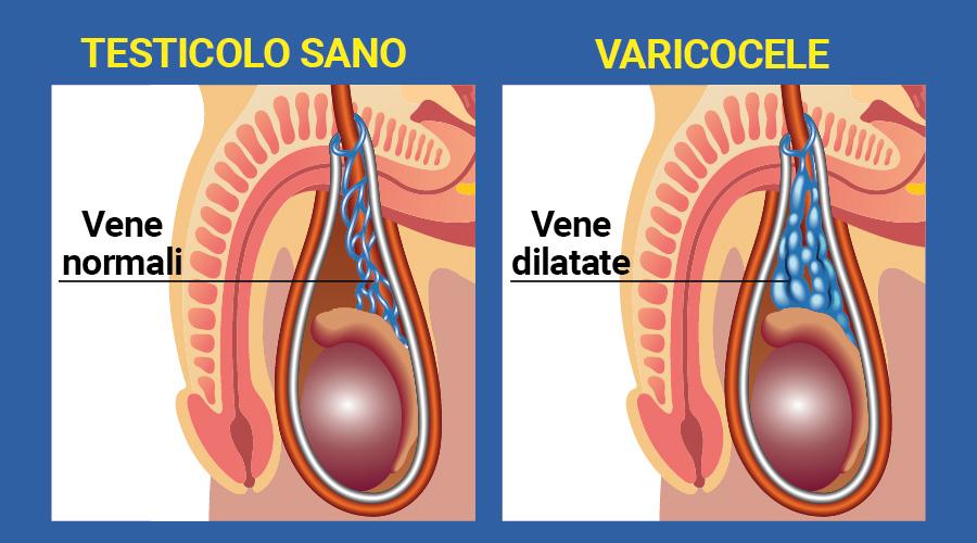 Risalita testicoli durante rapporto sessuale. Andrologo a Viterbo | Andrologo Roma, Urologo Roma