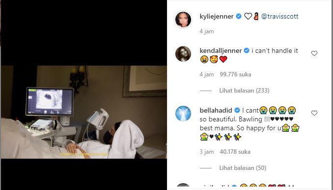 Model internasional, Kylie Jenner umumkan hamil anak kedua.