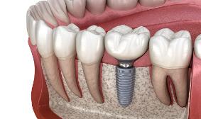 Tooth-Implants-Sydney