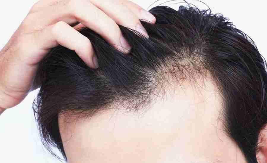 hair-loss-men-compressed-1