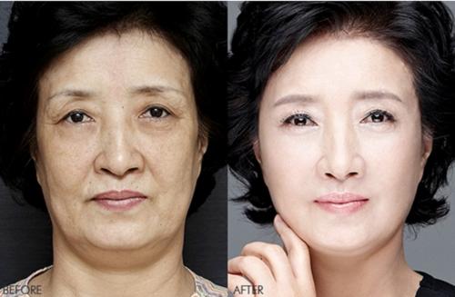 Cách làm căng da mặt tại nhà giúp bạn tiết kiệm tiền Cach-lam-cang-da-mat3-7