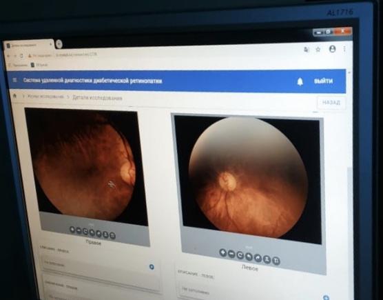 03.02.2020 Фонд науки поддержал проект по дистанционной диагностике диабетической ретинопатии