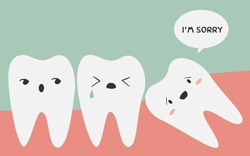 Wisdom-Teeth-Removal-Sydney