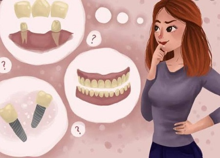 Mini-dental-implants-Melbourne