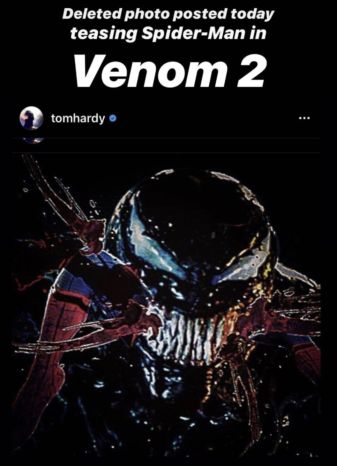 Tom Hardy With A Post And Delete Of Spider Man Venom