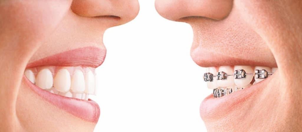 Invisalign-dentist-in-Toronto2