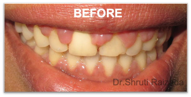 Periodontal Dentistry - Gum Infection treatment-before