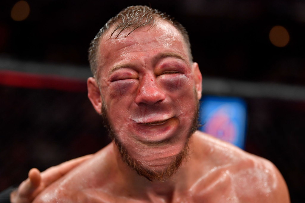 cerrone-face-rebuild-from-eye.png