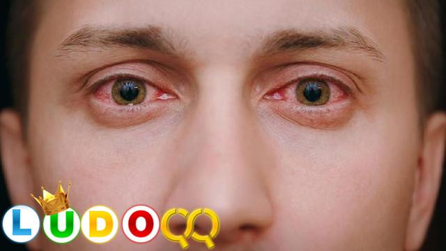 3 Gejala Awal Covid-19 yang Menginfeksi Pada Mata