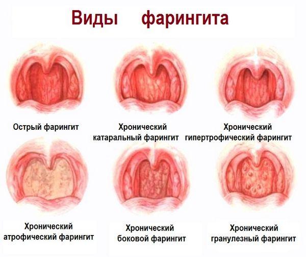 Vidy-faringita