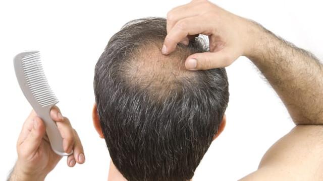 https://i.ibb.co/X8qHrt8/Hair-Fortin-Review.jpg