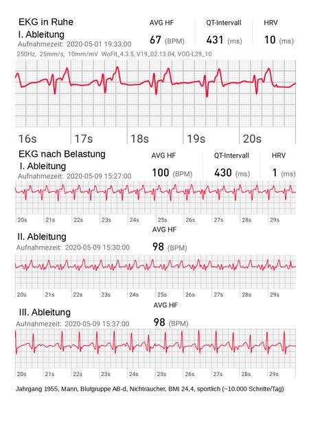 EKG-Ausz-ge