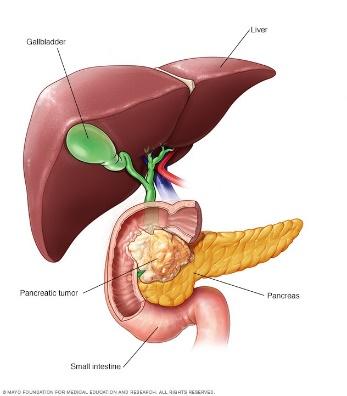 pankreas-2.jpg