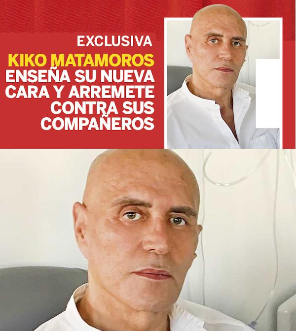 La cara de Kiko Matamoros - Página 3 Jpgrx9