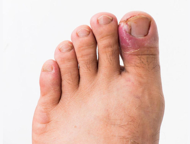 https://ankleandfootsurgery.net/wp-content/uploads/2019/06/ingrown-toenail.jpg