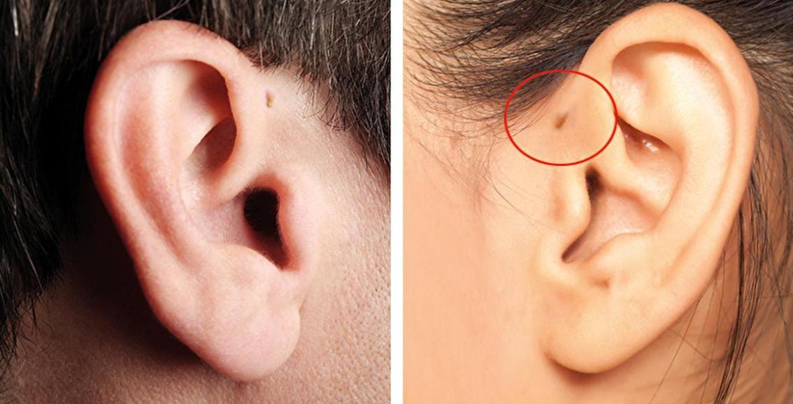 Cos'è il piccolo buco nell'orecchio che hanno alcune persone