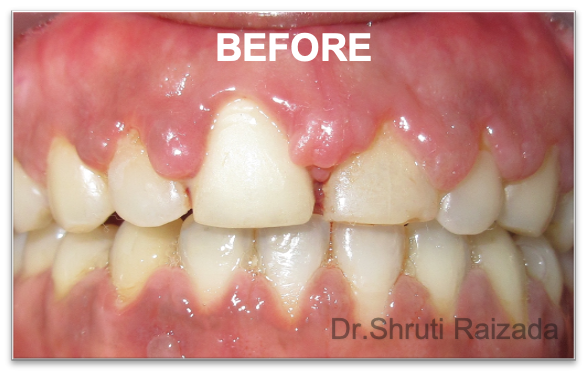 Periodontal Dentistry - After