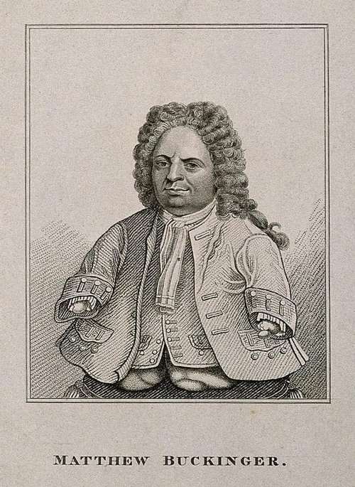 Matthias_buchinger_a_phocomelic_stipple_engraving_wellcome_v0007015er