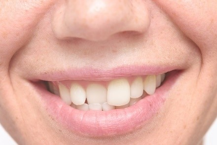 The Most Suitable Cosmetics Dentistry Services to Fix Crooked Teeth