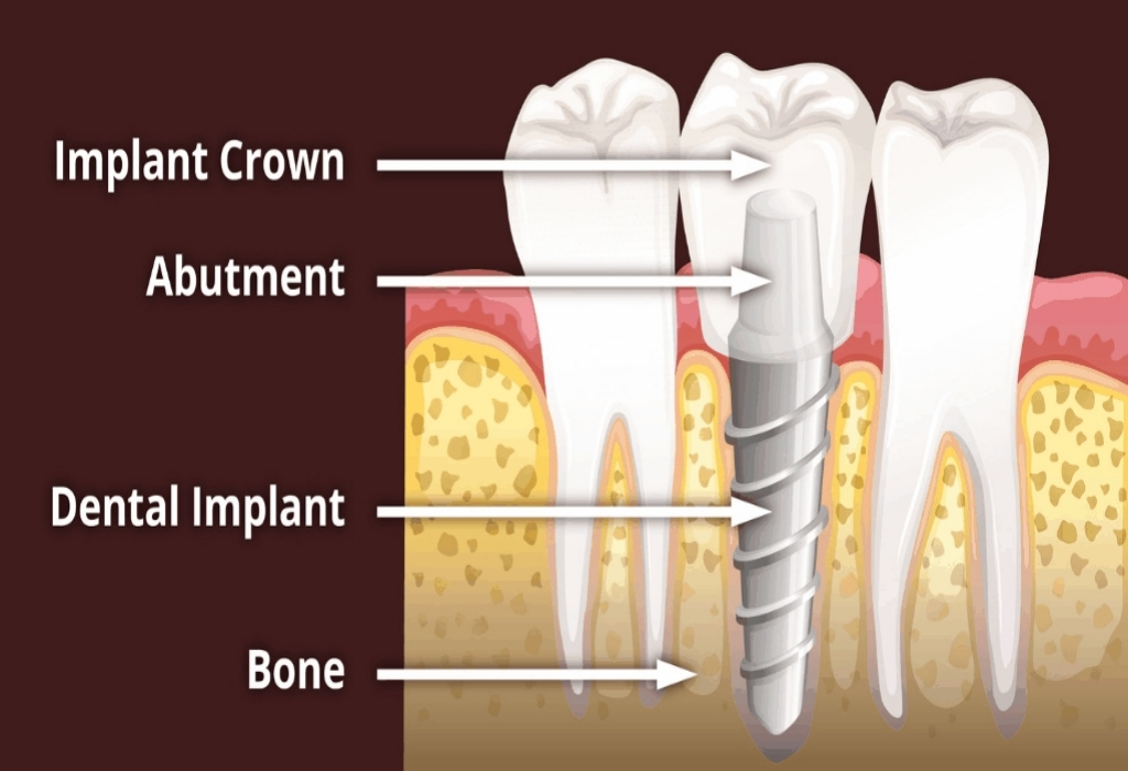 The Expert Secret on Dental Implants Revealed
