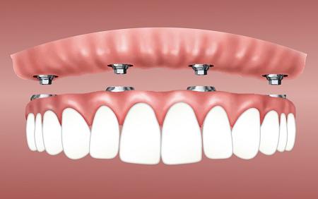 dental-implants-in-Albuquerque-nm