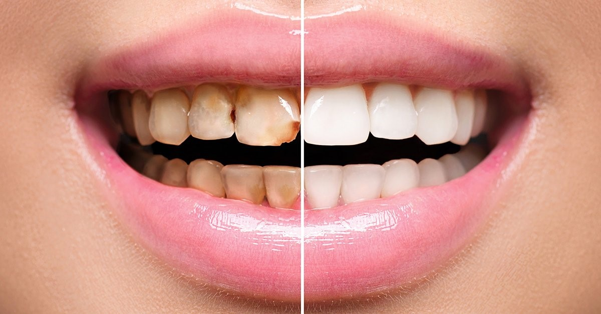 Sorts of Dental Veneers to Make a Better Decision