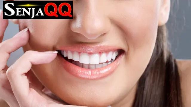 Beberapa Cara Menghilangkan Karang Gigi Membandel