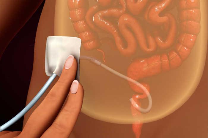 dialisi-peritoneale