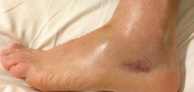 أسباب وعلاج تورم القدمين والقدم اليسرى