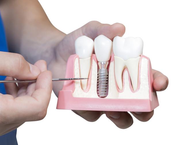 как ставят зубные импланты