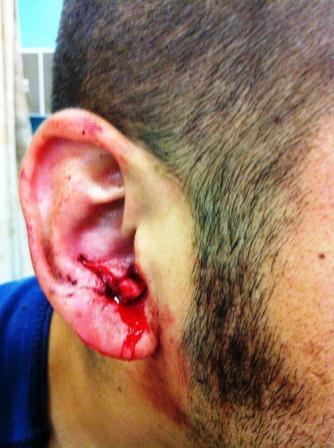 Jetter Injury to Ear