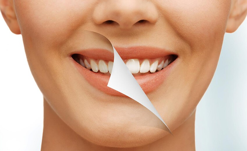 Kinds of Cosmetic Dental Surgeries