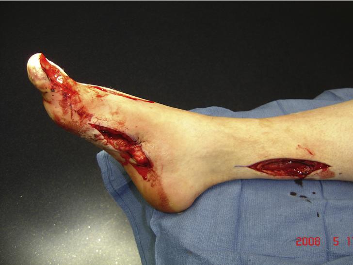 Leg & Foot Injury