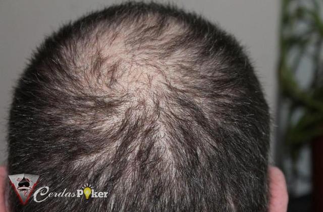 Terlalu Lama Bekerja Bisa Menyebabkan Kerontokan Rambut